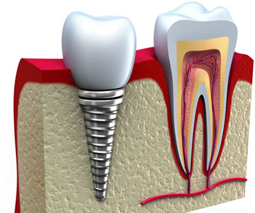dental implants dentist in Charlottesville